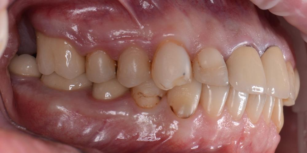 Фото до лечения, вед слева Тотальная реконструкция улыбки с протезированием на имплантах безметалловыми короноками и винирами