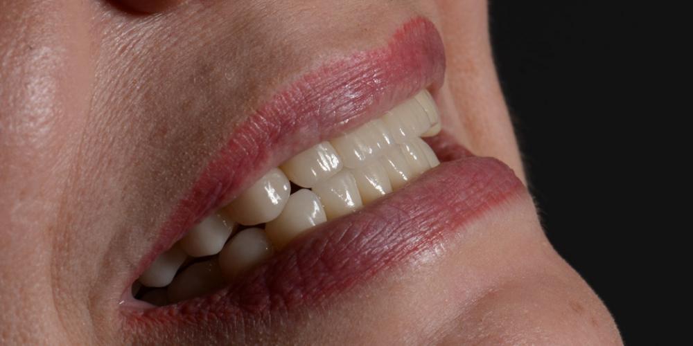 Улыбка Тотальная реконструкция улыбки с протезированием на имплантах безметалловыми короноками и винирами